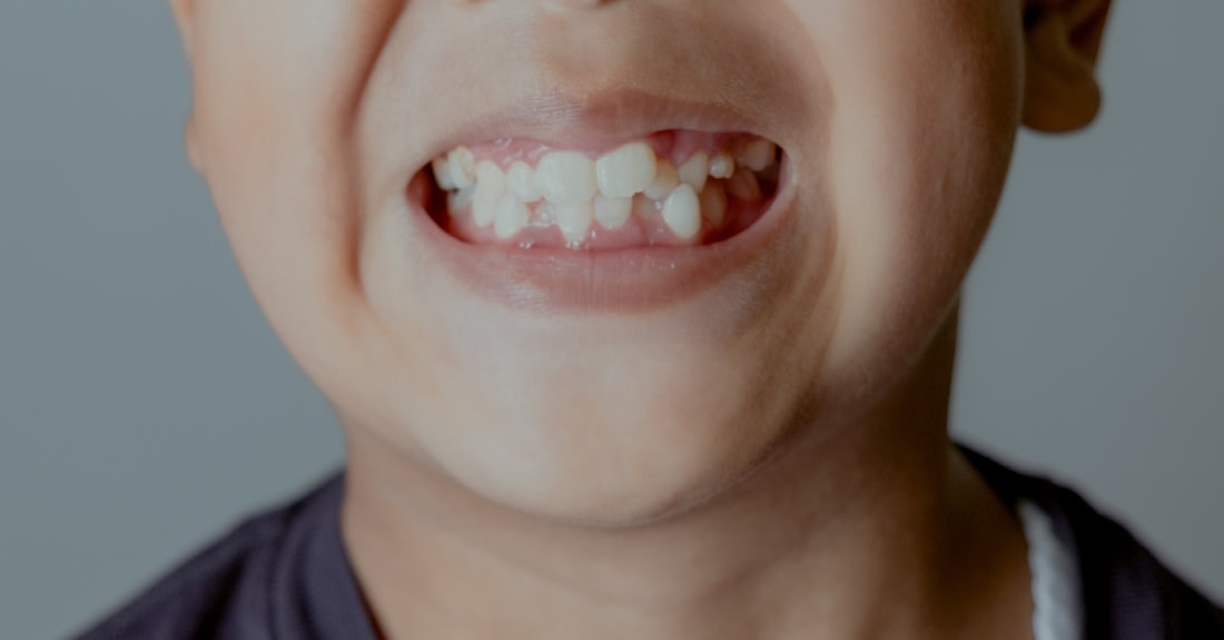 How Misaligned Teeth Affects the Quality Of Life